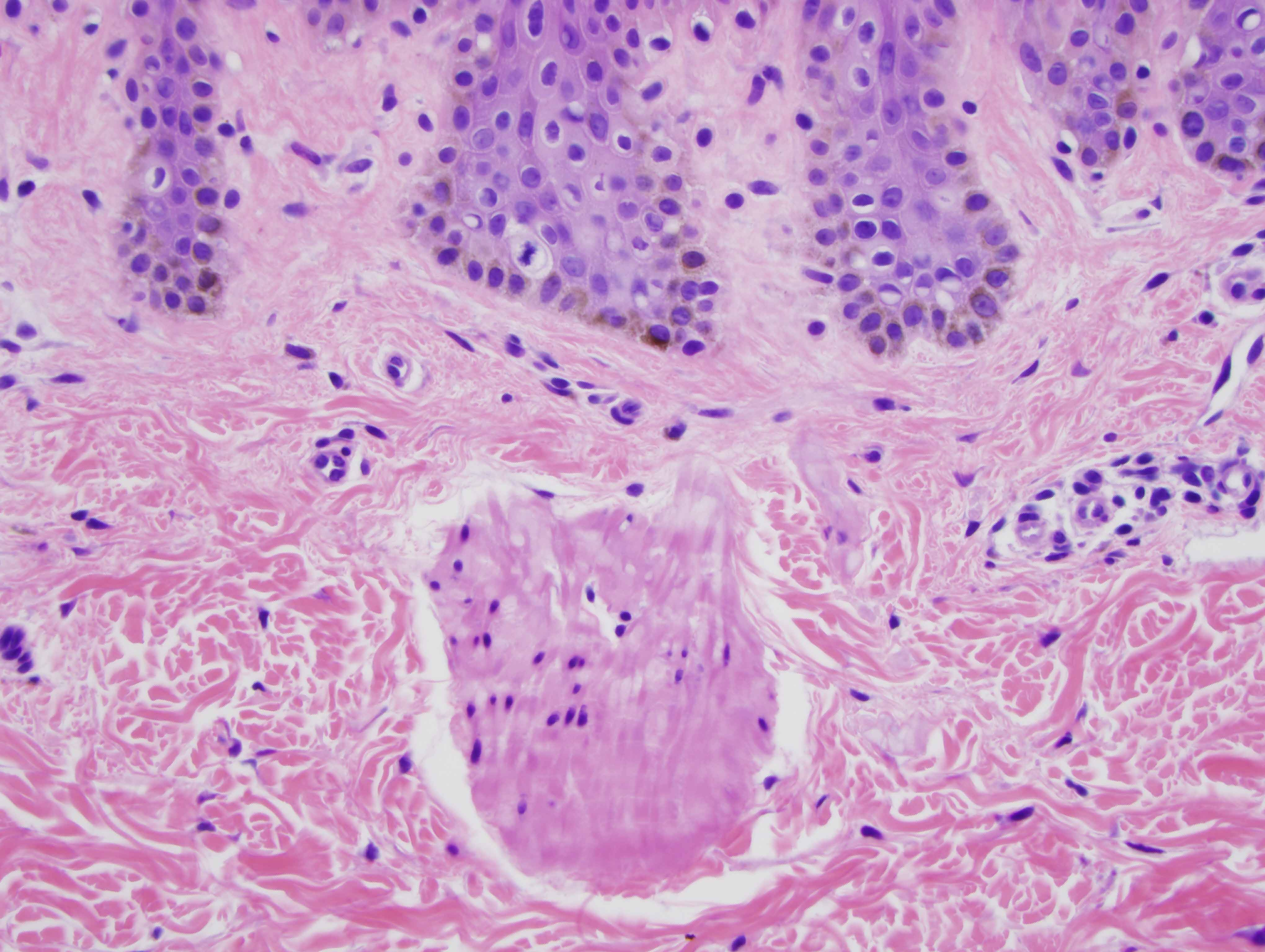 Slide 4: TThere are a few bundles of smooth muscle located within the superficial dermis unassociated with any intact follicular structure suggesting that the smooth muscle observed is a hamartomatous process.