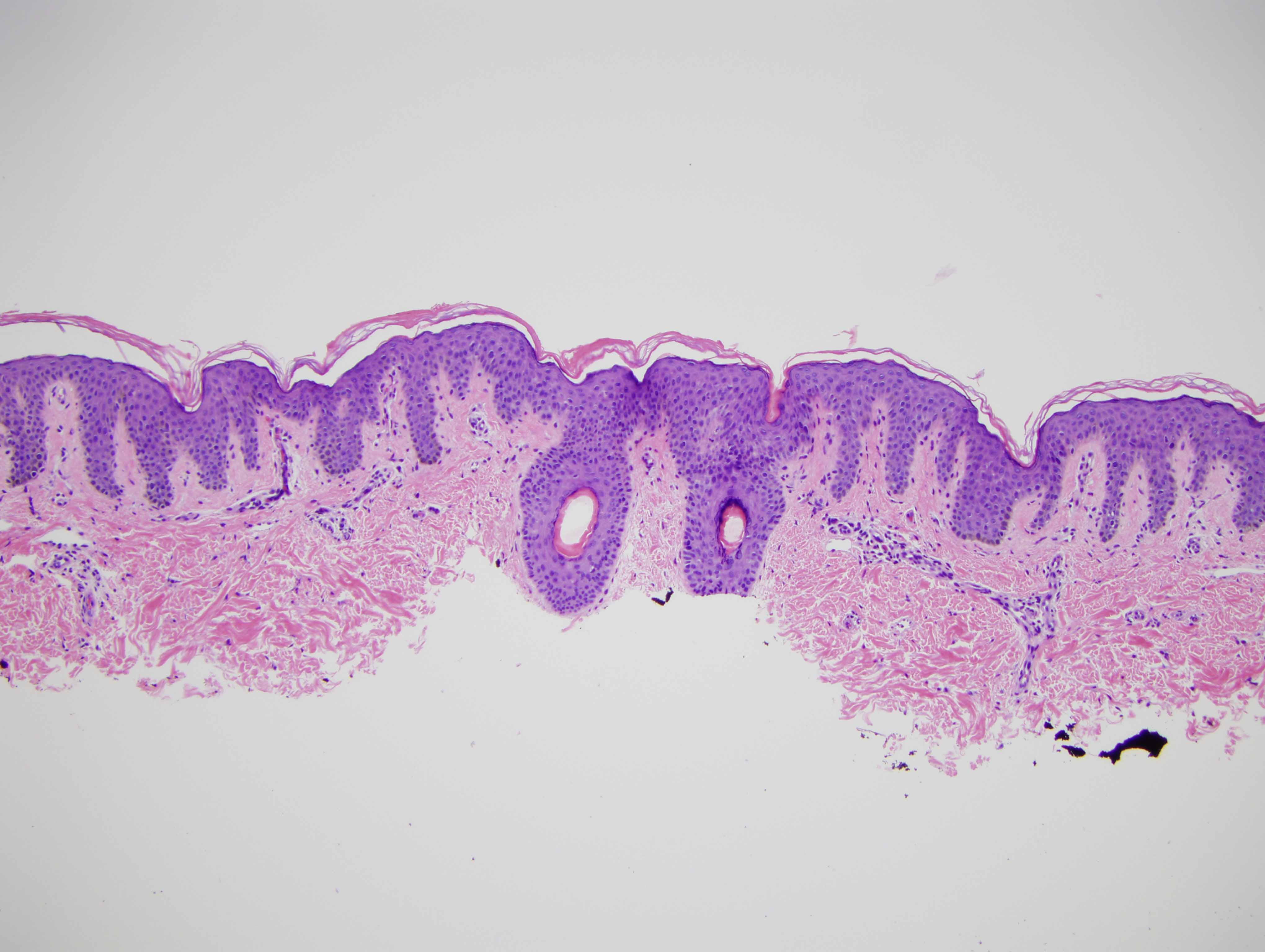 Slide 1: There are two closely apposed hair follicles also potentially reflective of an unusual hamartomatous pattern.