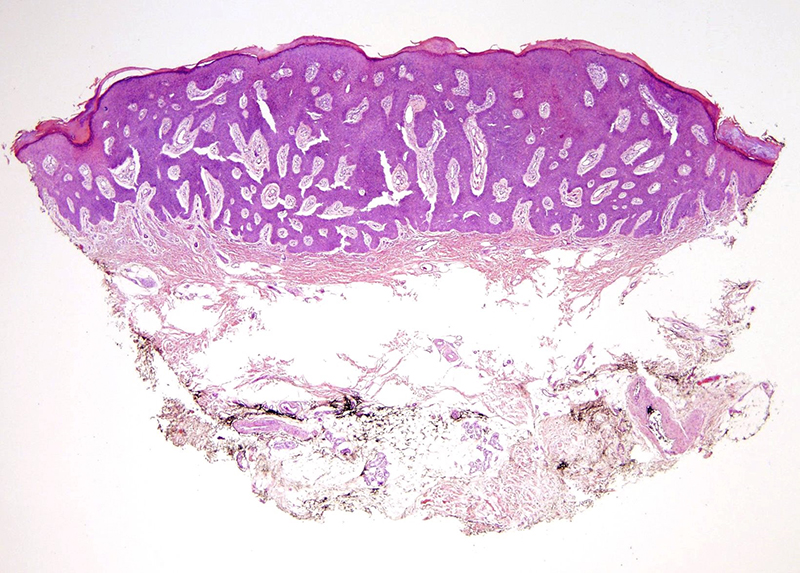 Slide 1: 79 year-old woman with a right foot bleeding papule.  The excision specimen shows a fairly broad based intraepidermal squamous proliferative lesion.