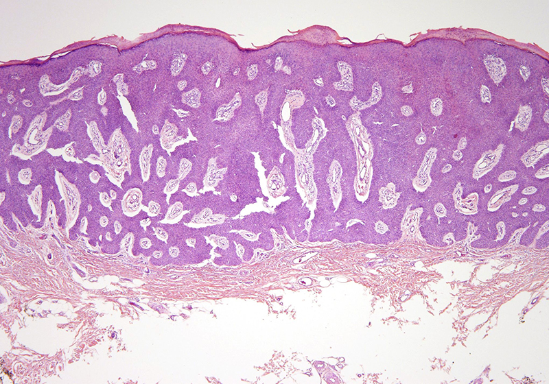 Slide 2: The lesion assumes an interanastomosing growth pattern with a hypervascular stromal background.