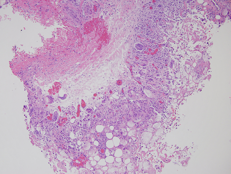 Slide 1: An 18 month old healthy female patient presents with a firm mobile nodule on the left upper arm since birth. Within the panniculus there is a striking pattern of degenerative alterations of the adipocytes.