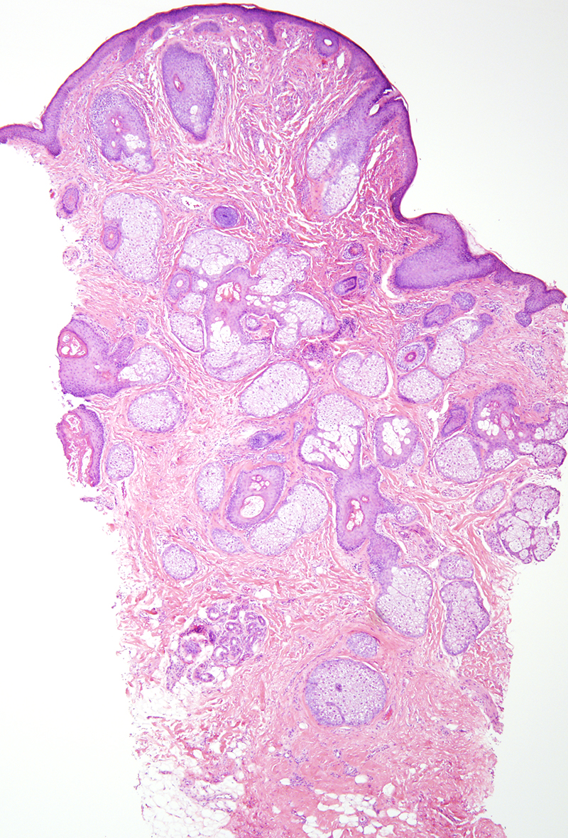 Slide 1: 65 year-old woman with an upper eyelid lesion.  The excision specimen comprises a cyst with a true epithelial lining. A surrounding rim of fibroblastic connective tissue and skeletal muscle fibers is appreciated.