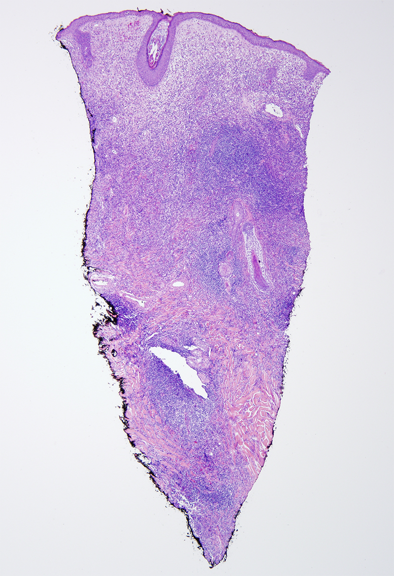 Slide 1: 48 year-old woman with a purplish plaque of the face. Low power examination discloses an extensive diffuse and nodular inflammatory cell infiltrate.