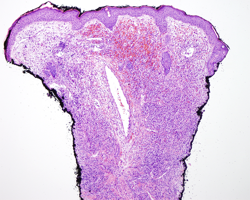 Slide 2: There is accentuation of the inflammatory cell infiltrate around blood vessels whereby this infiltrate is associated with concomitant vasculitic alterations which in turn range in quality from being more acute to chronic.  In particular, the vessels are surrounded and permeated by this aforesaid inflammatory cell infiltrate and show evidence of vascular compromise characterized by hemorrhage and hemosiderin deposition.