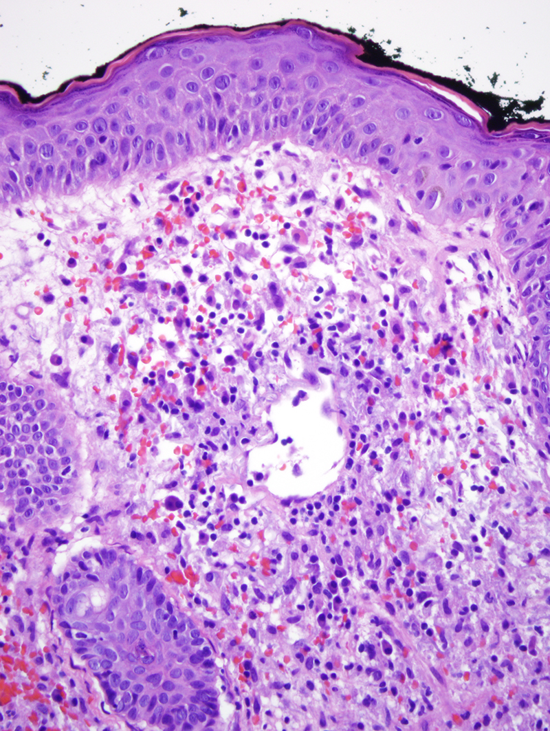 Slide 6: There is focal mural fibrin deposition and some vessels have a more hyalinized fibrotic appearance with attendant vascular ectasia. The infiltrate is without any significant cytologic atypia. A very extensive array of immunohistochemical stainswas performed and did not demonstrate any phenotypic atypicality of the infiltrate.