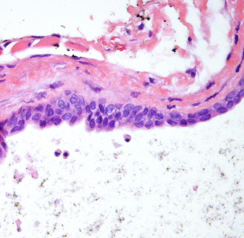 Slide 2: High power examination of the cyst lining discloses a mature apocrine epithelium showing classic decapitation secretion. These are the features of an apocrine hidrocystoma