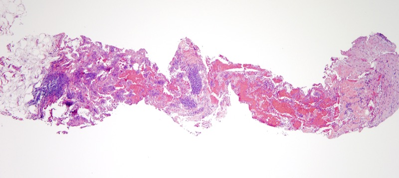 Slide 1: 70 year-old man with an upper arm lesion.<br><br>Low power examination shows vascular channels with associated inflammatory cells.