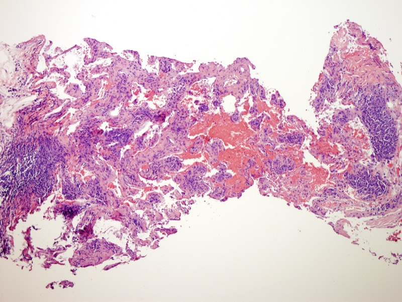 Slide 2: A spindle cell proliferation is noted in association with vasoformative channels.