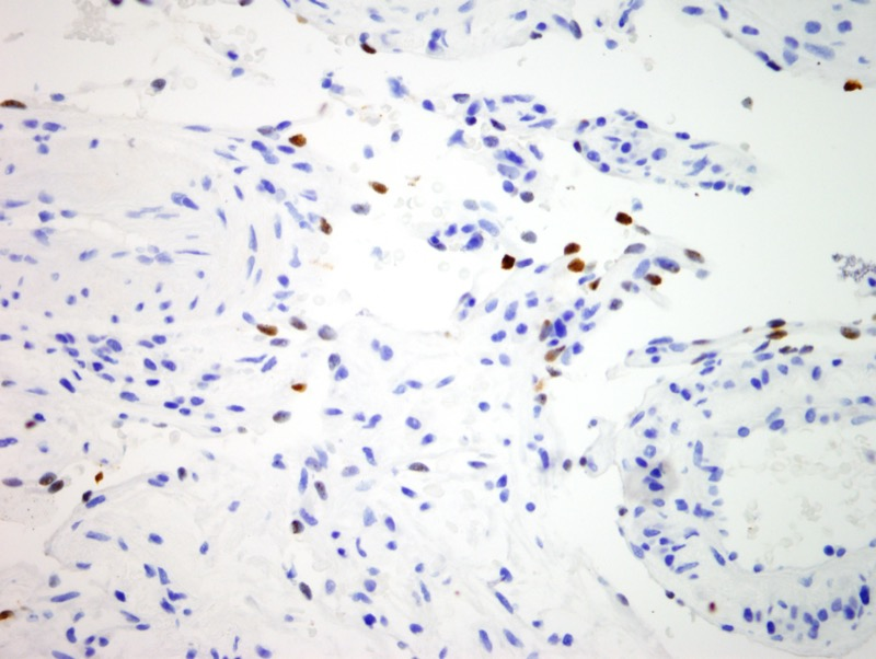 Slide 4: There is nuclear staining of the spindled cells for HHV8.