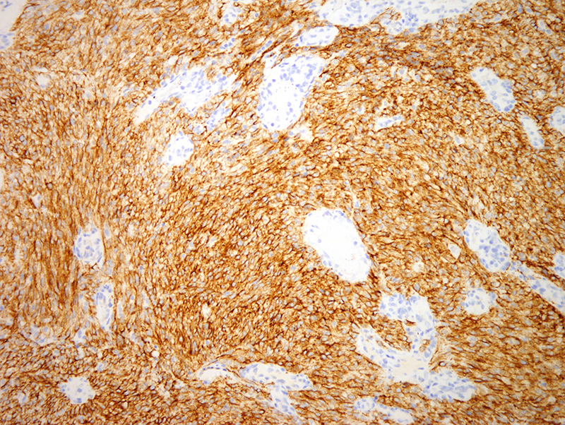 Slide 6: As well the neoplastic cells stain positively for D2-40 while cytokeratin is negative (not shown). The findings are highly characteristic for Kaposi's sarcoma, consistent with the nodular variant.