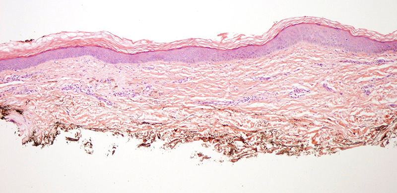 Slide 1: 75 year-old man with a history of seborrheic keratosis of the thigh s/p excision, now the area has changed by becoming darker peripherally.