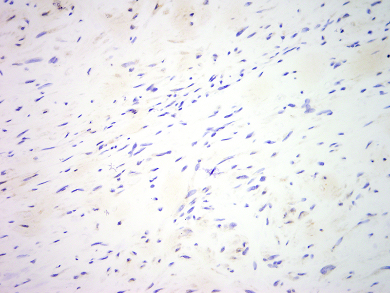 Slide 8: Desmin is negative. Caldesmin was only minimally positive (not shown).