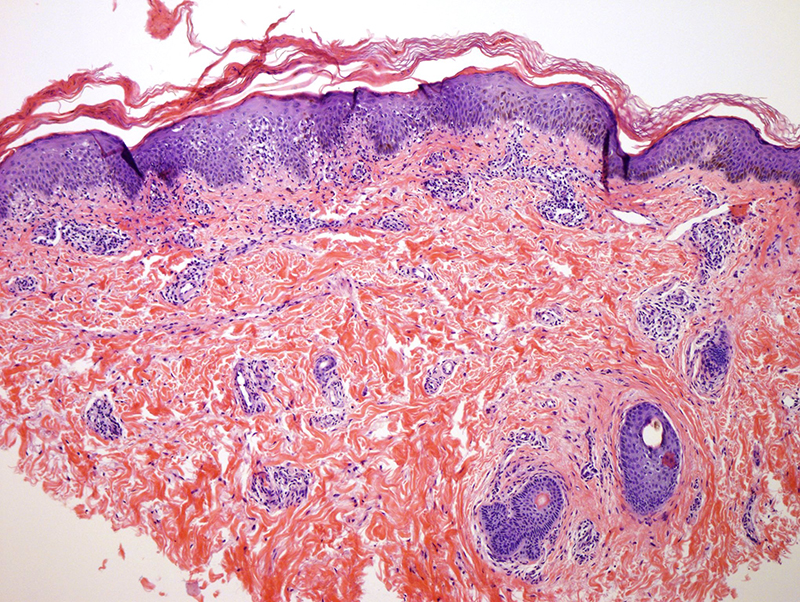 Slide 1: 16 year-old female with bilateral medial thigh lesions.  The biopsy shows a mild epidermal hyperplasia whereby there is overlying striking hyperkeratosis with prominent parakeratosis.