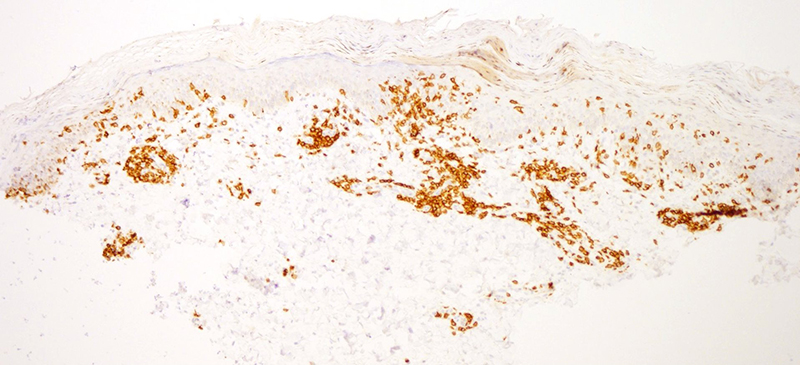 Slide 5: CD3 immunostain. Comprehensive phenotypic studies were performed.  The infiltrate was highlighted by Beta F1 and the pan T cell markers CD2, CD3 (shown here), and CD5.