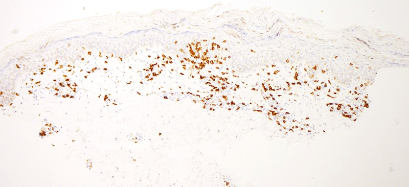 Slide 6: CD8 immunostain. There was a predominance of CD8 lymphocytes within the epidermis compared to those of the CD4 subset whereby the CD4 to CD8 ratio is likely in the realm of 1:3.