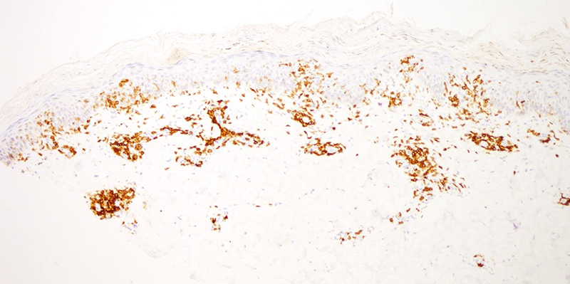 Slide 7: CD5 immunostain. The histopathology is quite characteristic of pityriasis lichenoides chronica.  From a cytomorphologic perspective the lymphocytes are small in size, appearing somewhat hyperchromatic with some degree of nuclear contour irregularity.