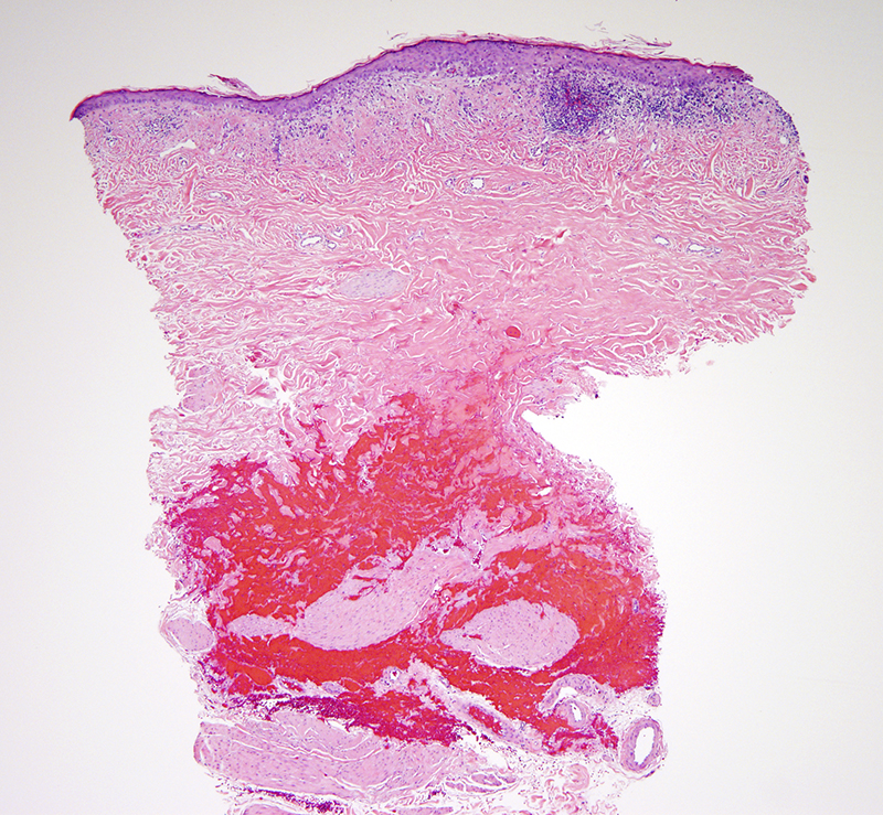 Slide 1: 87 year-old woman with an erythematous patch of the nipple.