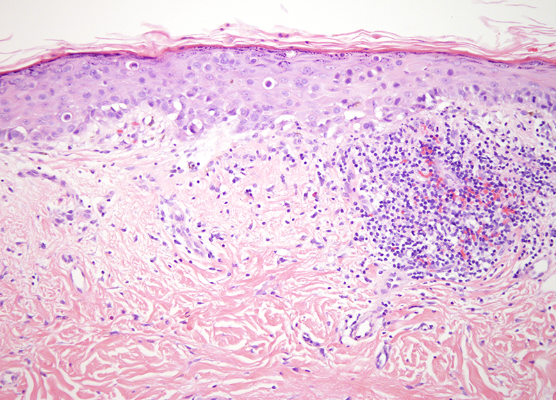 Slide 2: The specimen shows an intraepidermal epithelioid proliferation of atypical cells that display abundant cytoplasm.