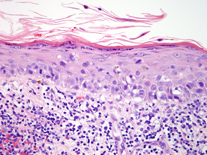 Slide 3: Many of the atypical cells show pagetoid spread throughout all layers of the spinous layer. There is a background lichenoid lymphocytic infiltrate.