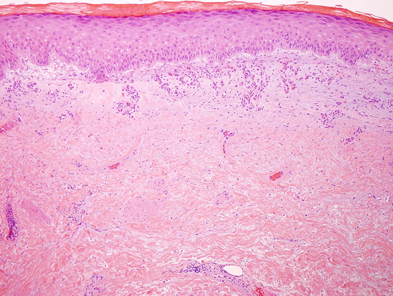 Slide 2: There is a striking sclerosing reaction within the reticular dermis. The sclerosis is characteristic for morphea/scleroderma.