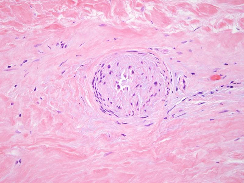 Slide 4: There are also supervening chronic microangiopathic changes characterized by thickened vessels walls likely reflecting basement membrane zone reduplication with variable endothelial cell denudement.