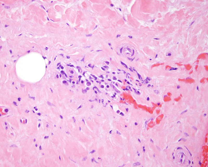 Slide 5: This sclerosing process is accompanied by a plasmacytic infiltrate.  The plasmacytic infiltrate is accentuated around blood vessels and relatively modest in degree albeit discernible.