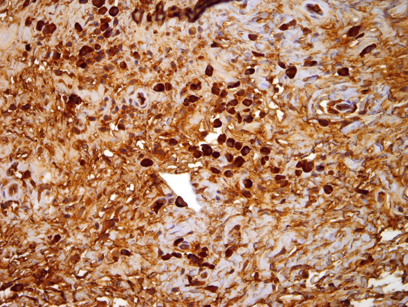 Slide 7: Kappa immunostain. There is clear cut evidence of kappa light chain restricted plasmacytic infiltrate with an abnormal kappa to lambda ratio that exceeds 10:1