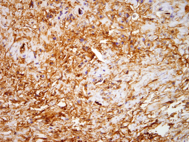 Slide 8: Lambda immunostain. There is clear cut evidence of kappa light chain  restricted plasmacytic infiltrate with an abnormal kappa to lambda ratio  that exceeds 10:1.  The findings are consistent with paraneoplastic superficial morphea.