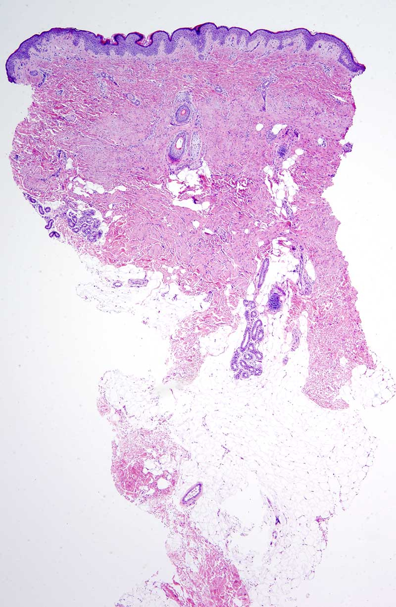 Slide 1: 4 year-old boy with a poorly defined truncal lesion.