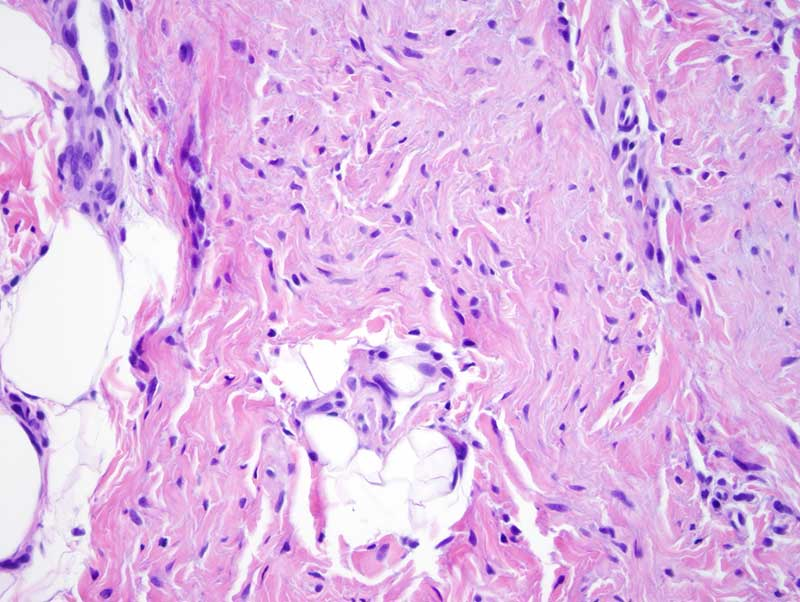 Slide 6: Mature fat is present in the deeper reticular dermis amidst the spindled cells in a somewhat haphazard fashion.