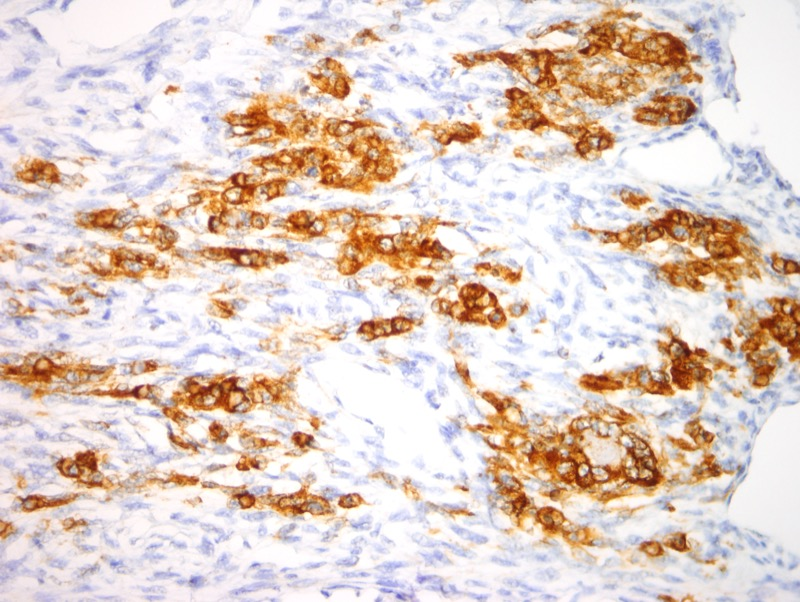 Slide 7: Focally, cells exhibit strong cytoplasmic staining with desmin.
