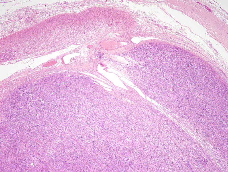 Slide 2: An associated nerve (upper half of image) is identified in association with the lesion.