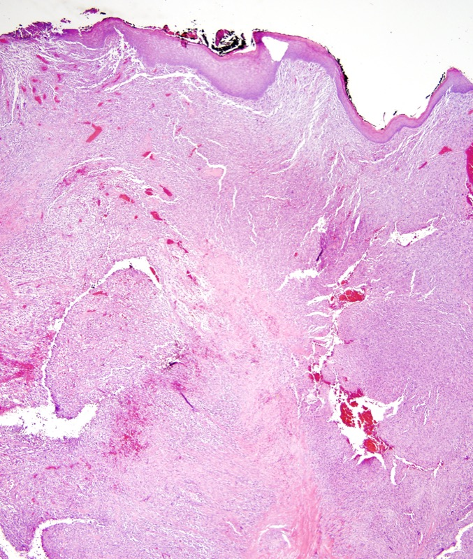 Slide 1: 94 year-old man with a 4 cm scalp mass. This excision specimen shows a very extensive tumefactive spindle cell tumor within the dermis.