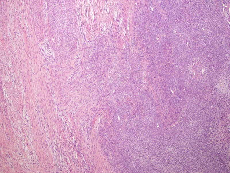 Slide 3: There is variable cellularity with less cellular areas (left) intermingled with highly cellular and more epithelioid looking areas (right of image).
