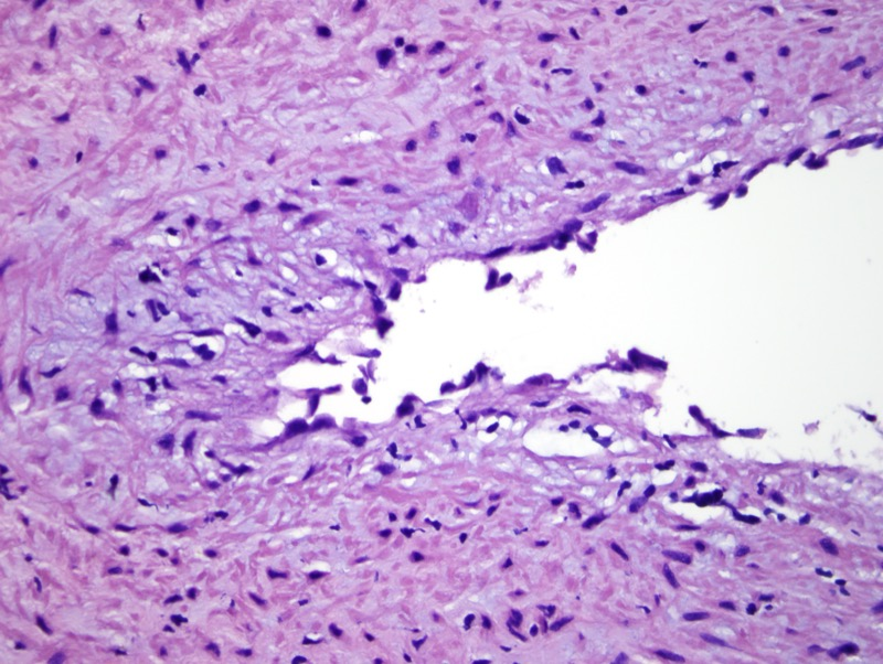 Slide 5: Cellular areas focally showing cells with prominent eosinophilic cytoplasm.