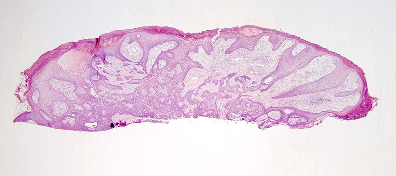 Slide 1: 42 year-old woman with a leg lesion