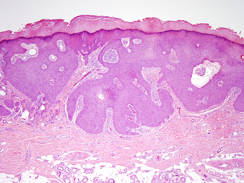 Slide 2: The excision specimen shows a well defined neoplasm contiguous with the epidermis.