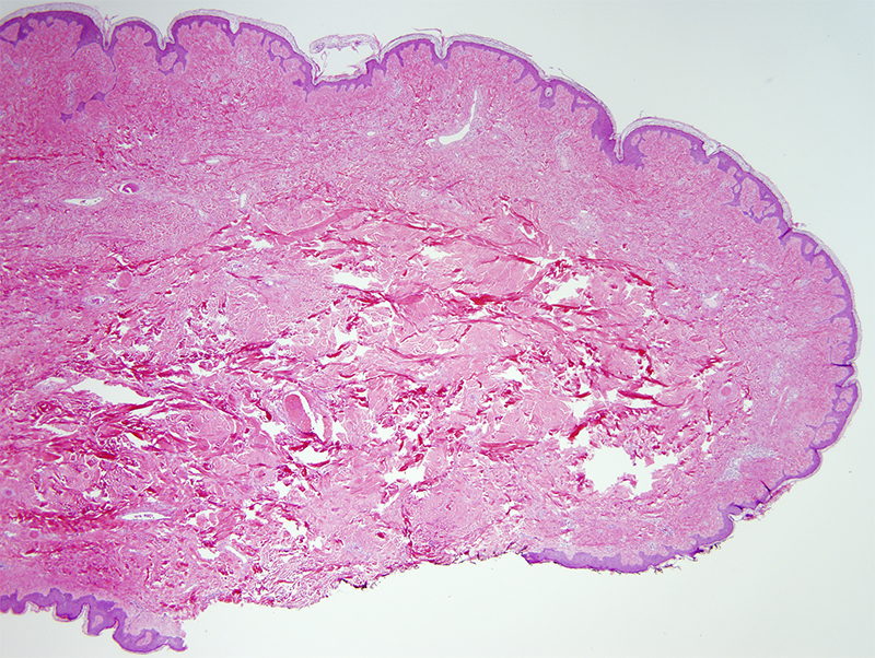 Slide 1: 52 year-old man with polypoid shoulder lesions.  The excision specimen shows a very large skin tag.  The epidermis is fairly unremarkable.  The subjacent dermis is composed of a markedly collagenized stroma devoid of adnexal structures.