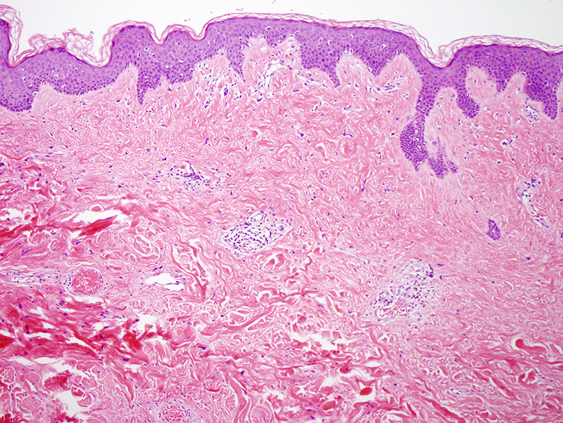 Slide 2: The epidermis is fairly unremarkable. The subjacent dermis is composed of a markedly collagenized stroma devoid of adnexal structures. A patchy lymphocytic infiltrate is also identified. The lymphocytic infiltrate is most apparent superficially.