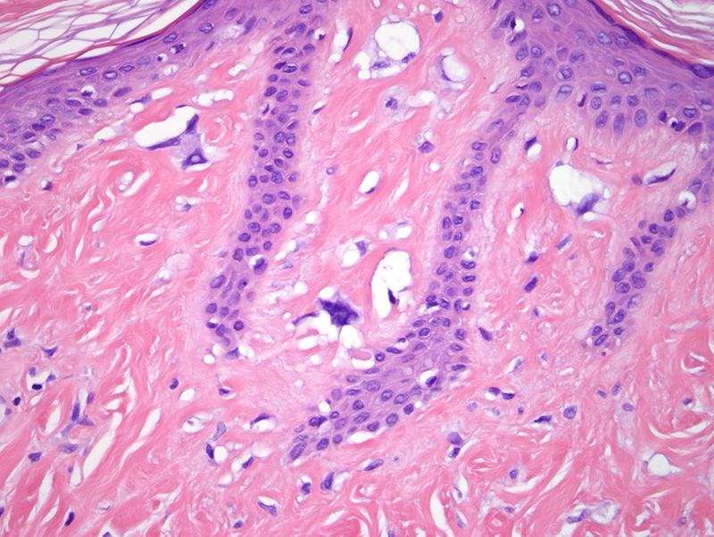 Slide 5: There is cellular atypia amidst the fibroblastic elements particularly accentuated immediately beneath the epidermis where a number of stellate cells with multinucleation and hyperchromasia are noted..