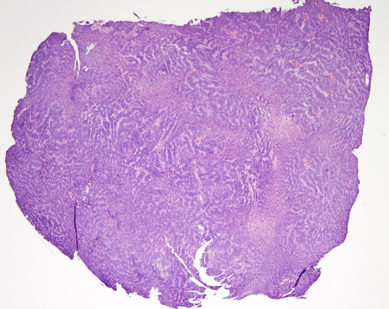Slide 1: 49 year-old man with an alar lesion. <br><br>The resection specimen is highly cellular composed of