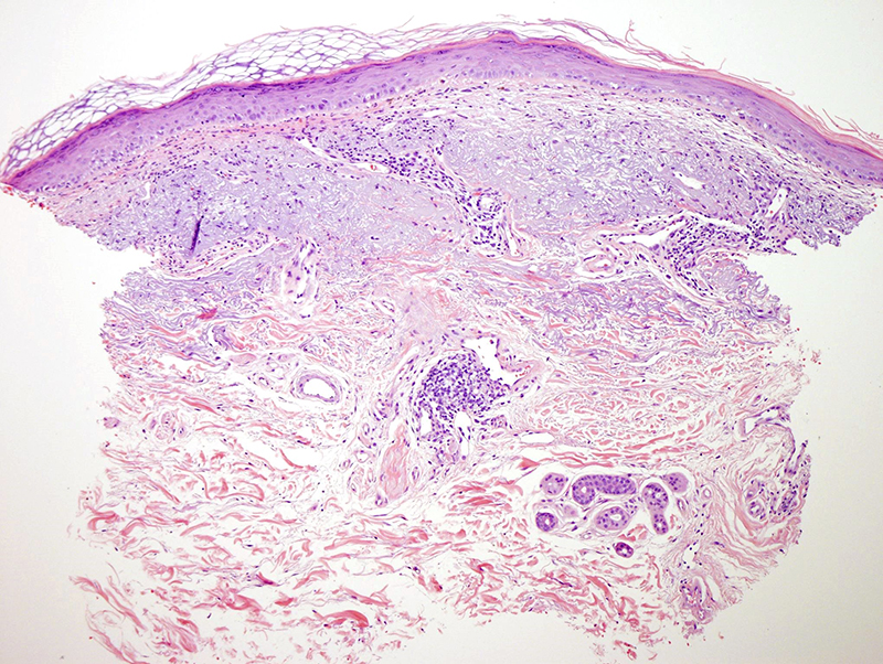 Slide 1: 40 year-old woman with bilateral upper extremity and neck lesions. The epidermis is attenuated and is surmounted by an orthohyperkeratotic scale. There is a moderate increase in mesenchymal mucin within the dermis.