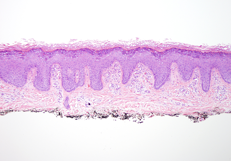 Slide 1: 70 year-old man with a pretibial lesion. The biopsy shows an acanthotic epidermis. The granular cell layer is quite striking. There is an exaggerated basket-weave pattern of keratinization.