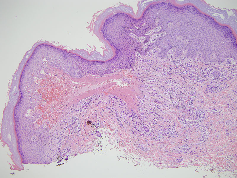 Slide 1: The epidermis is focally separated from the dermis. There is neovascularization with hemorrhage and hemosiderin deposition. The collagen is quite sparse relative to the number of blood vessels.