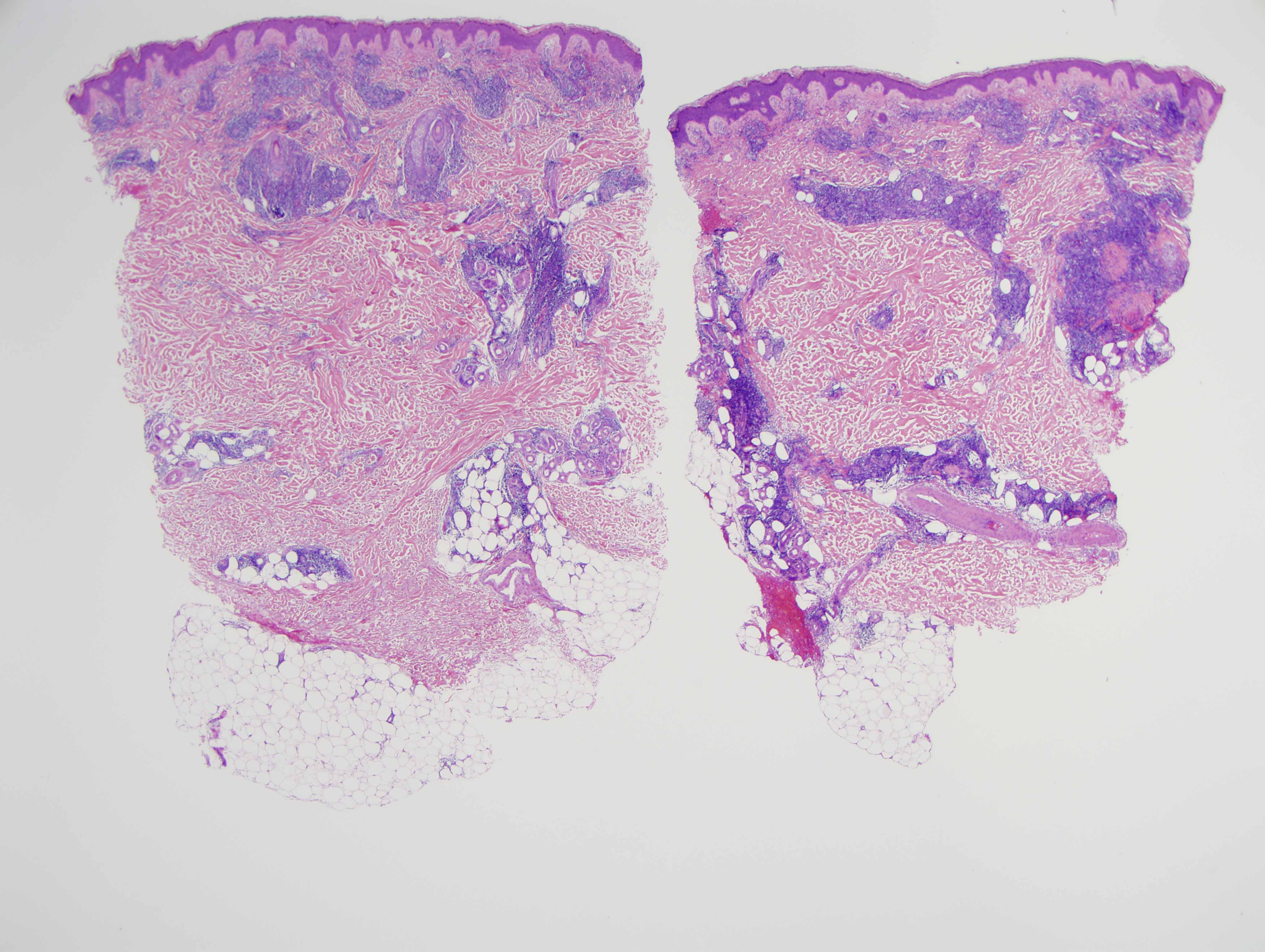 Slide 1: The biopsy shows a very extensive lymphocytic infiltrate within the dermis involving the superficial and deep dermis with subcutaneous extension.