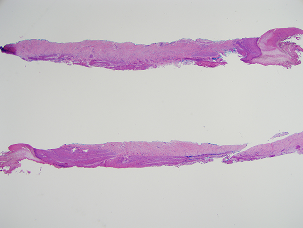 Slide 1: The shave biopsy has the appearance of nail matrix. There is also adjacent epithelium that has the appearance of nail fold epithelium.