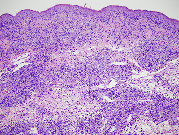 Slide 2: Within the dermis there are nodular collections of neoplastic lymphocytes surrounding and permeating vessels and infiltrating the adventitial dermis of the eccrine coil, resulting in nodular expansion of the adventitial dermis of the eccrine coil.
