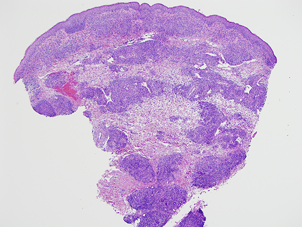 Slide 1: The biopsy shows a very atypical epidermotropic and pandermal lymphocytic infiltrate.