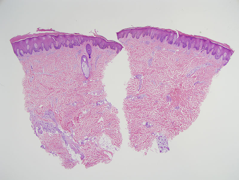 Slide 1: The biopsy shows an irregular psoriasiform epidermal hyperplasia. There is blunting of the rete ridge to plate ratio. The epidermis is surmounted by a scale that is parakeratotic in nature with entrapment of serum. There is a supervening perivascular lymphohistiocytic infiltrate largely confined to the superficial to mid dermis. Some scaffolding of lymphocytes and histiocytes along collagen and elastic fibers is noted.