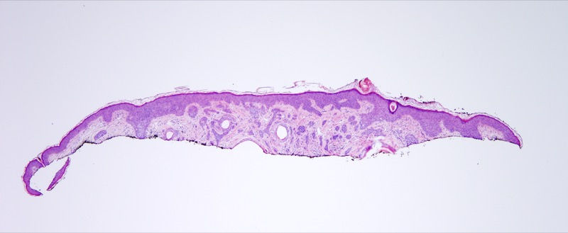 Slide 1: 22 year old woman with a cheek lesion. An irregular ill-defined infiltrate is noted within the dermis at low power.